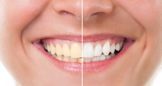 Teeth whitening - before and after example